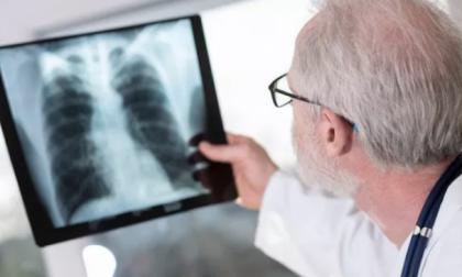 """Allarme polmonite, i casi sono 235. Gallera """"Curva epidemica in lieve calo"""""""