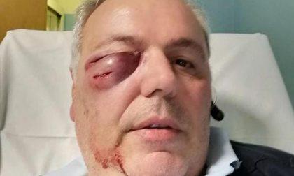 Autista aggredito da uno straniero ubriaco