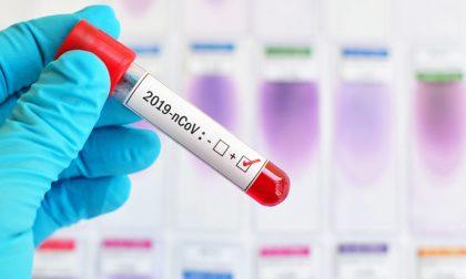 Coronavirus: i contagi in provincia di Lecco COMUNE PER COMUNE