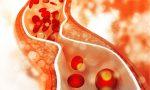 Combattere il colesterolo con gli steroli vegetali