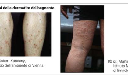 Casi di dermatite da parassiti dopo bagni nel ramo lecchese del Lario e nel lago di Pusiano